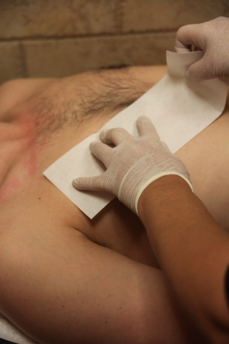 Facial hair manhattan removal